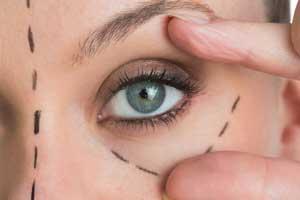 contorno-occhi-rughe