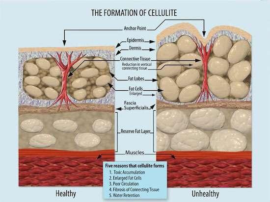 Cellulite-come-si-forma
