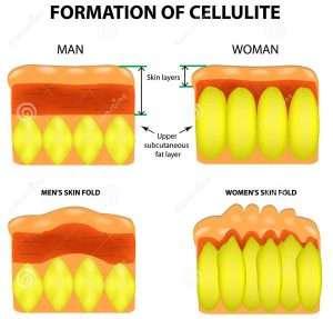 Differenza-uomo-e-donna-Formazione-della-cellulite