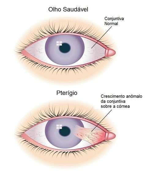 Occhiali-da-sole-Uomo---Pterigio