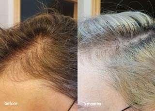 shampoo anticaduta risultati