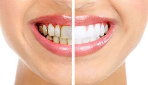 Sbiancamento Denti - Macchie scure sui denti