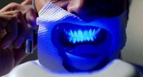 Sbiancamento denti Film George Clooney