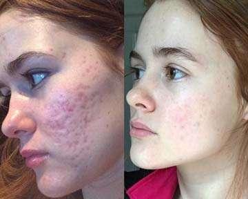 crema acne prima-dopo