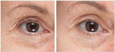 maschiera-occhiaie-shiseido-benefiance-prima-dopo